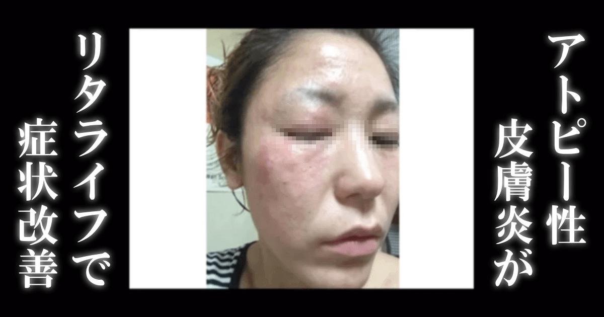 水素風呂によるアトピー性皮膚炎の改善