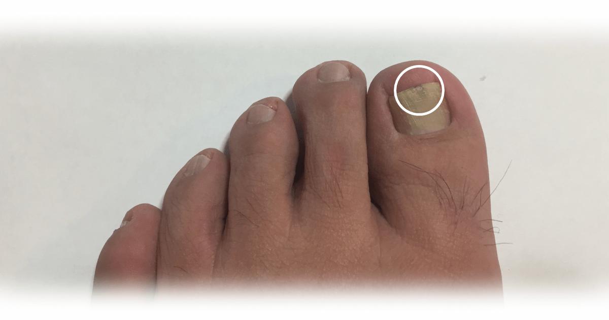 爪水虫の症状が水素風呂で改善
